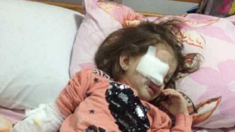 Назревает новый скандал: во время драки в детском саду в Днепре девочке проткнули глаз карандашом
