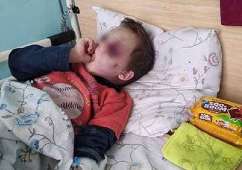 Под Винницей зверски избили 6-летнего ребенка: новые подробности и жуткие фото