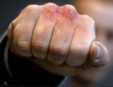 Напал прямо на парковке: во Львове избили консула Бельгии