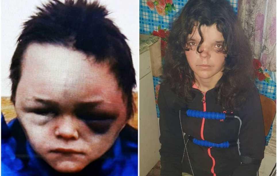 Очи черные от побоев: сообщили жуткие подробности об избиении 6-летнего ребенка в Винницкой области