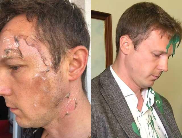 «Обманывать — это у них в крови»: Заместитель Садового имитировал ожоги на лице после скандала в ЛГС