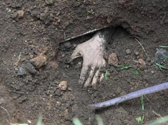 «Просто дикая история»: На Волыни чудом выжил мужчина, которого похоронили заживо