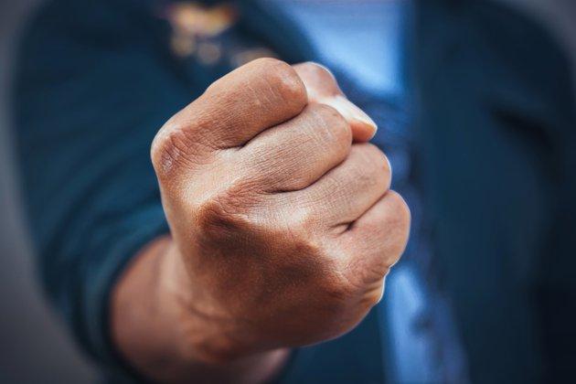 «Думал, мы не узнаем, где ты живешь, п ** аре?»: Жестоко избили ветерана АТО, который недавно признался в своей ориентации