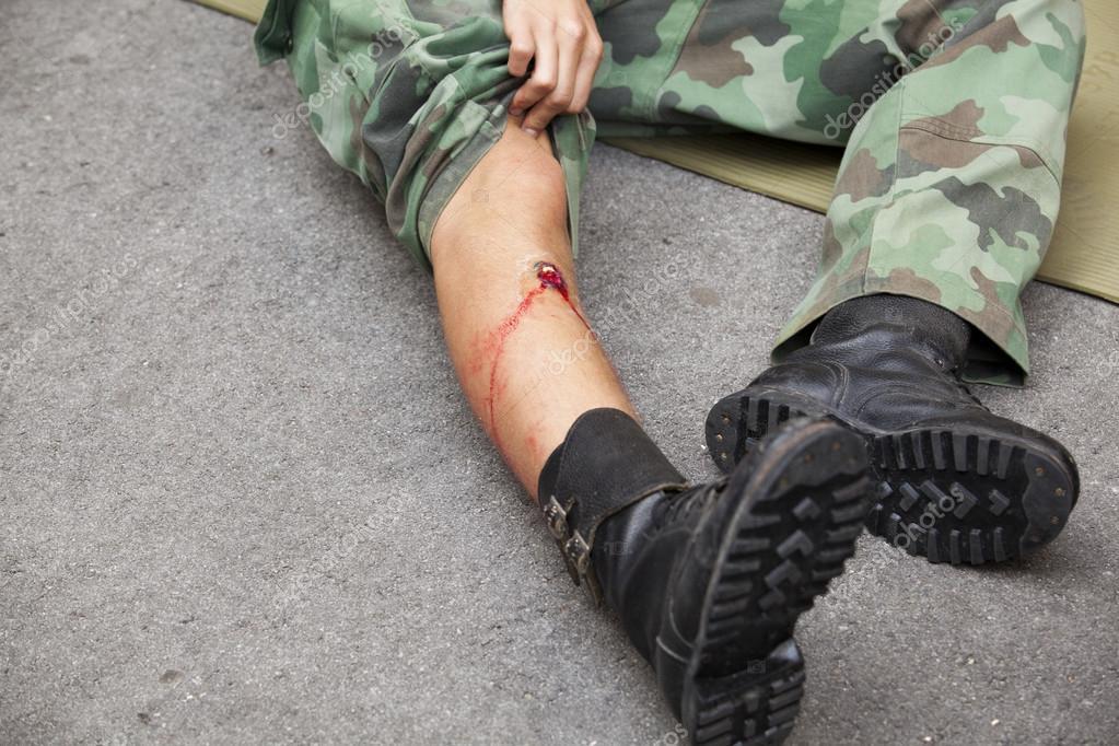 «Стреляли в лица в упор»: Полиция открыла стрельбу по гражданам. 280 жертв