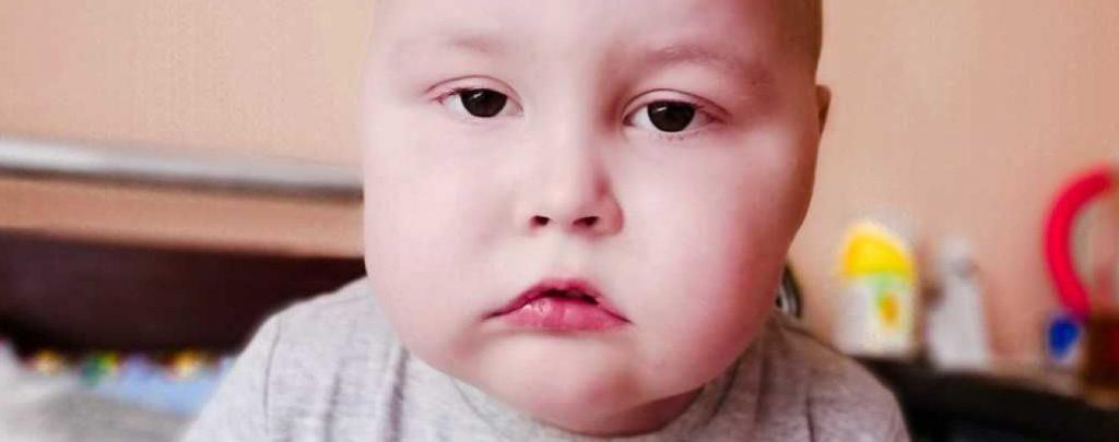 «Наш диагноз» Острый лимфобластный лейкоз»: Помогите малышу Артему побороть болезнь