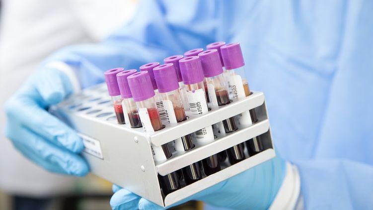 11 сотрудников! Во Львове вспышка коронавируса в лабораторном центре. Первые подробности