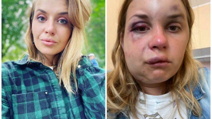 «Проснулась от удара по голове». В поезде неизвестный жестоко избил женщину: сын все видел