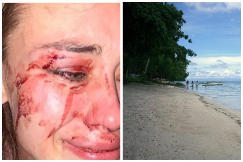 «Прямо на пляже»: Известную украинскую модель жестоко избили в Турции. «Не хочу молчать»