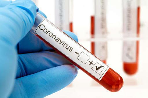 Спада нет. Обновленная статистика по коронавирусу на 16 сентября: 76 человек умерло в сутки