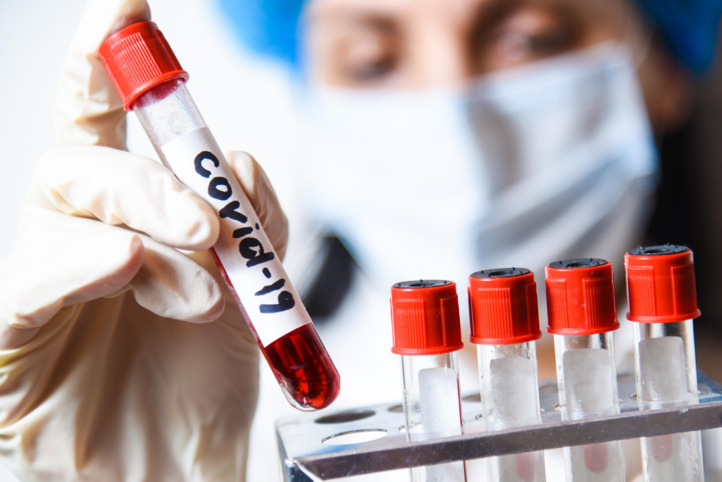 Цифры впечатляют! Обновленная статистика по коронавирусу в Украине. Стабильное снижение!